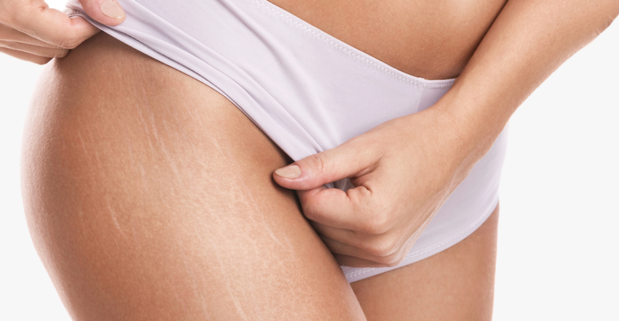 Stretch Marks Treatment and Scar Treatment in Lawrenceville
